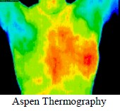 WIN/Aspen Thermography