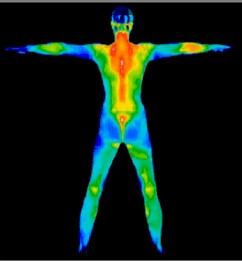 Thermography at WIN Health Institute