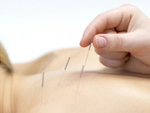 Acupuncture by Chris