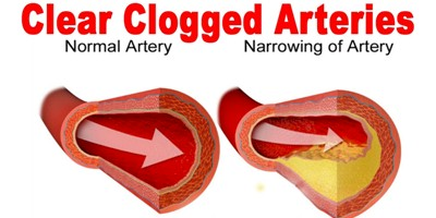 Foods to Unclog Your Arteries