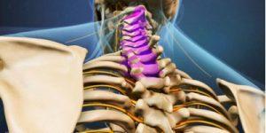 Spinal Angina - Dr. David Jensen